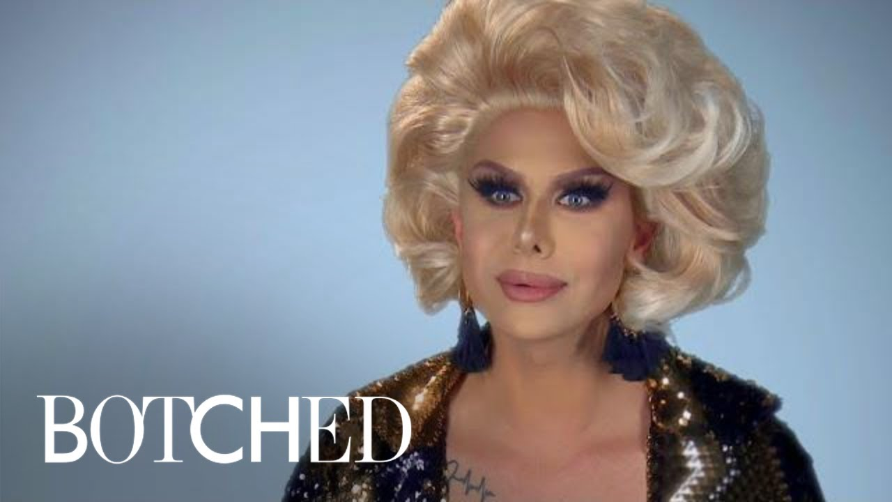 """Trinity The Tuck Fills Up His Lips on """"Botched"""" This Wednesday   E! 4"""