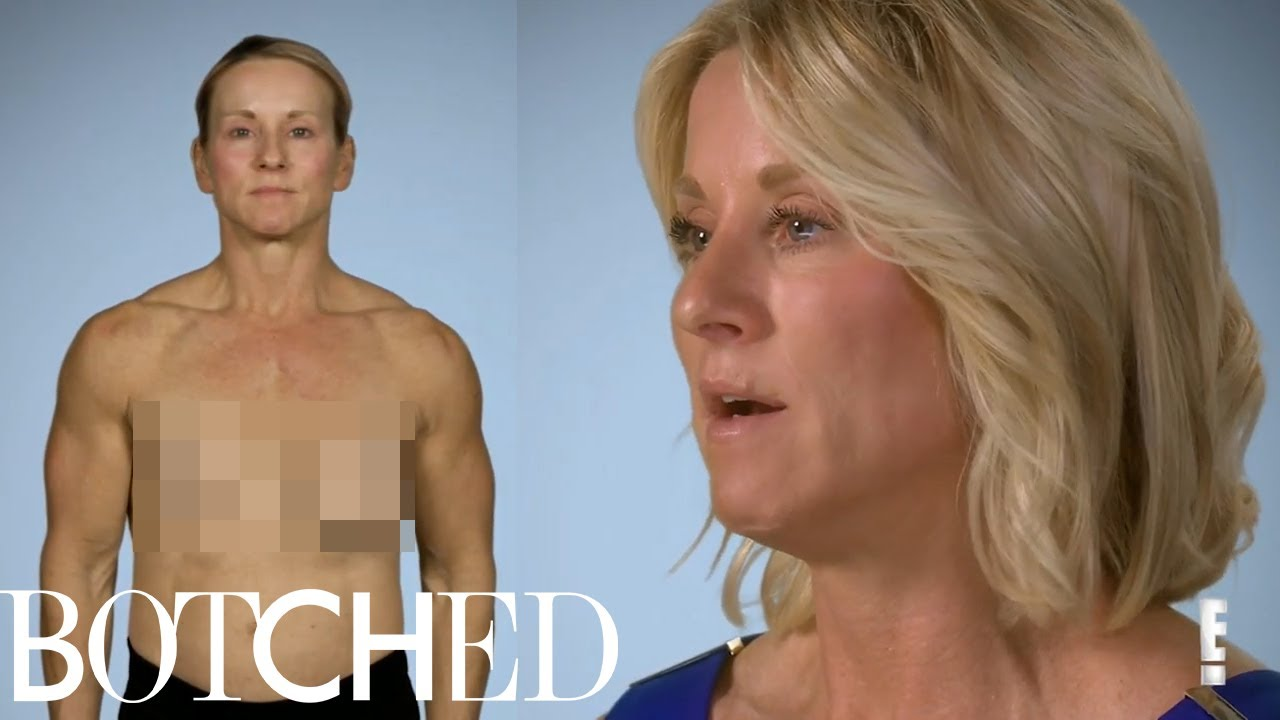 Meet Paula: The One Boob Wonder | Botched | E! 1