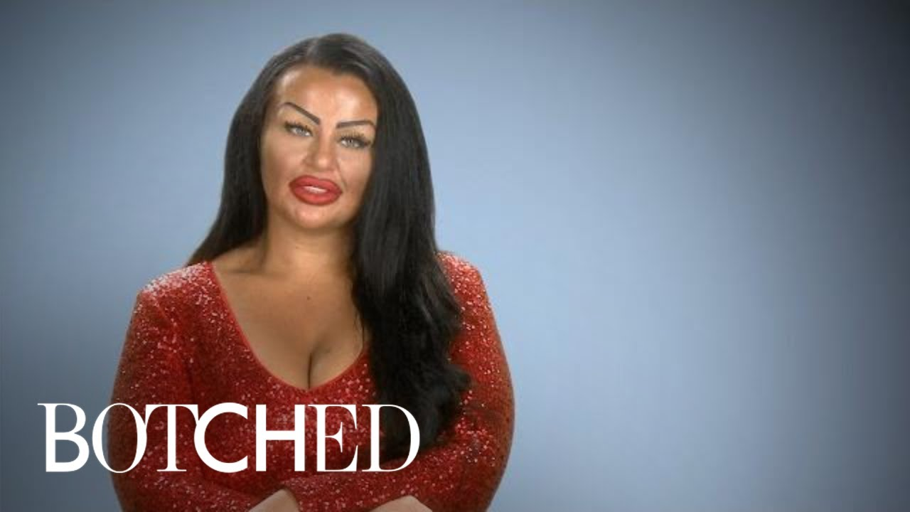 """""""Botched"""" Patient Wants Basketball Boobs With Hearts on Front 