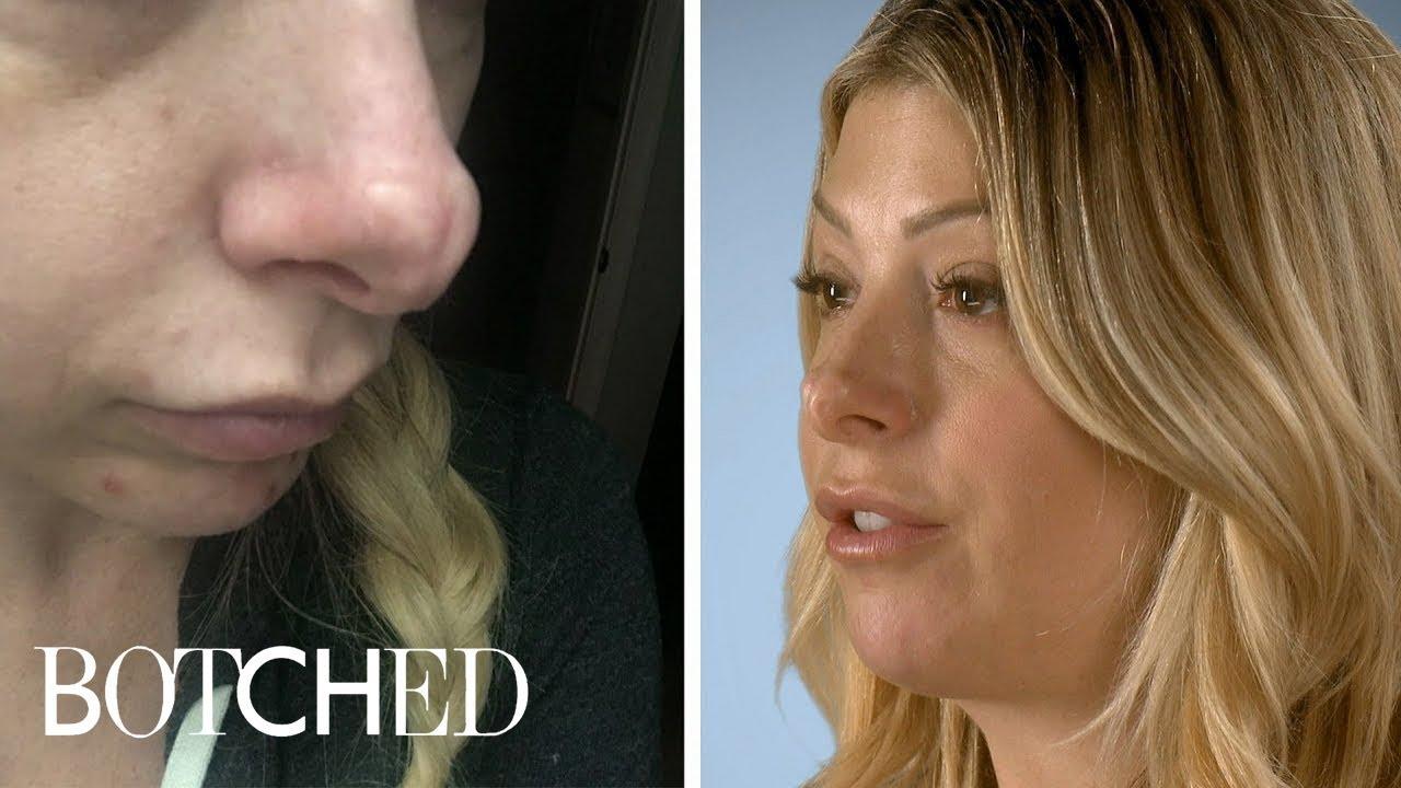 Jennifer Wants Her Jurassic Schnoz Fixed | Botched | E! 3