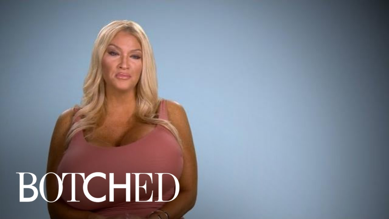 Allegra Explains Her Growing Giant Breasts | Botched | E! 5