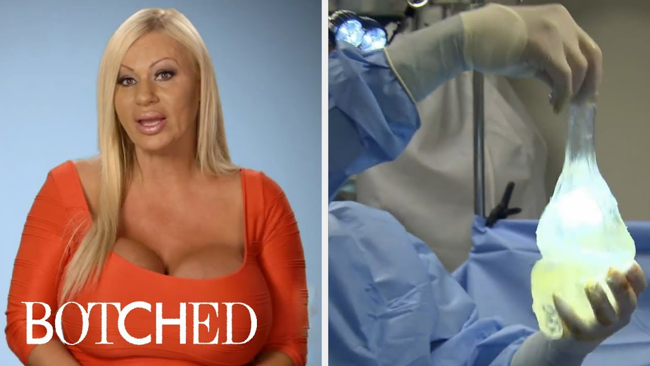 Botched And Its Most Intense Breast Implant Surgeries | E! 4