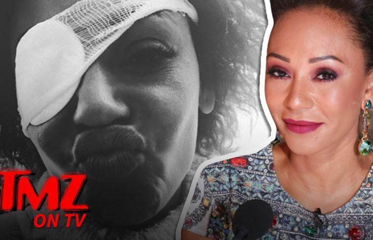 Mel B Sets Story Straight About Eye Problems | TMZ TV 1